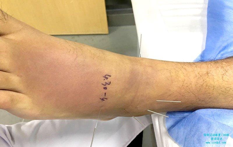 左踝关节扭伤