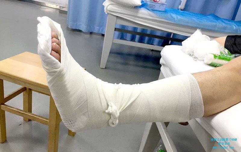 软组织肿胀左踝关节扭伤