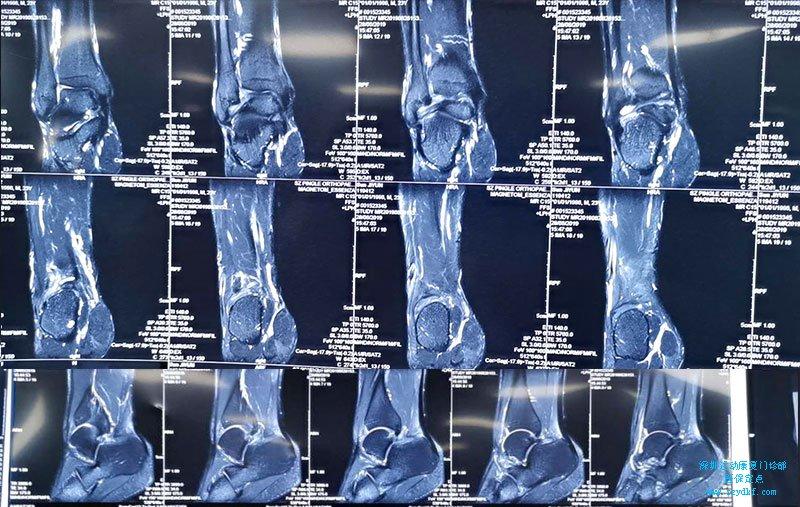 踝关节创伤性关节炎