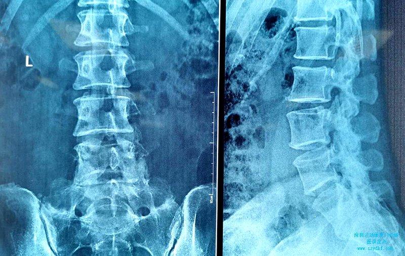 第5腰椎骶化-腰骶关节炎
