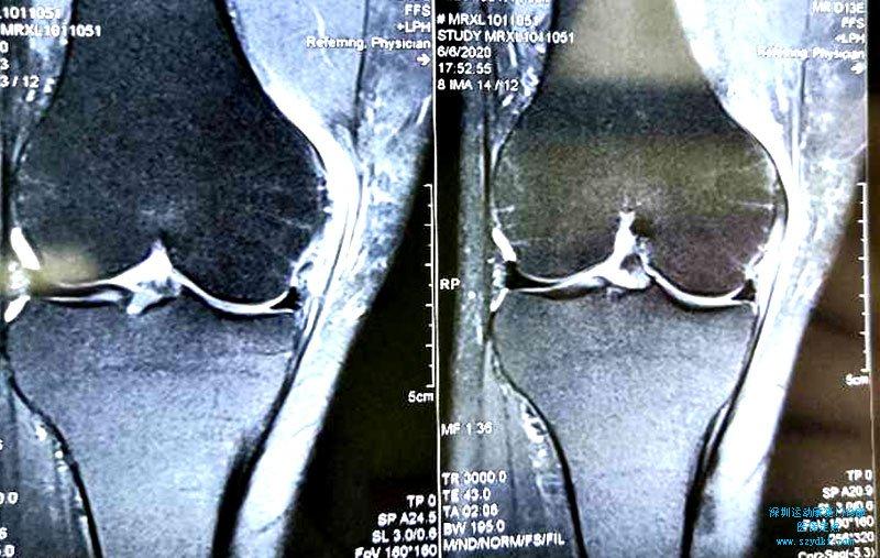 膝内侧副韧带损伤