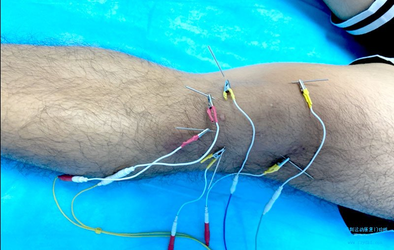左膝关节髌骨软骨软化症