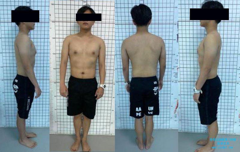 高低肩上交叉综合征下交叉综合征脊柱侧弯