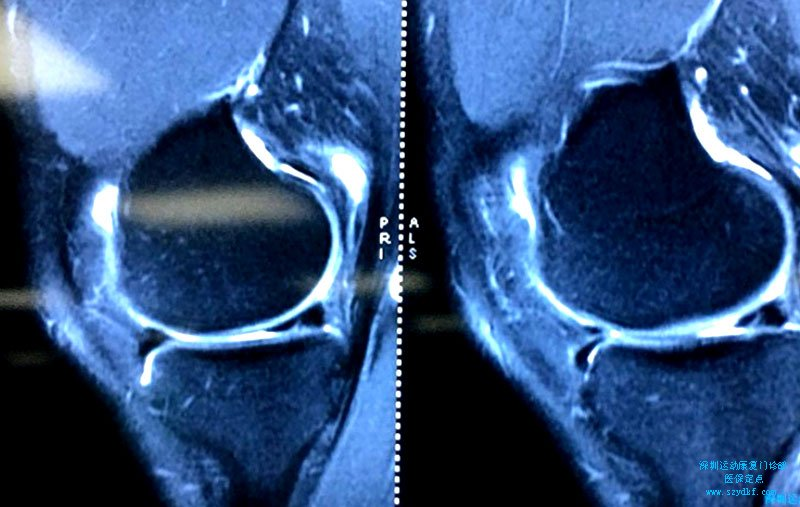 双膝疼痛半年余-双膝内侧半月板损伤