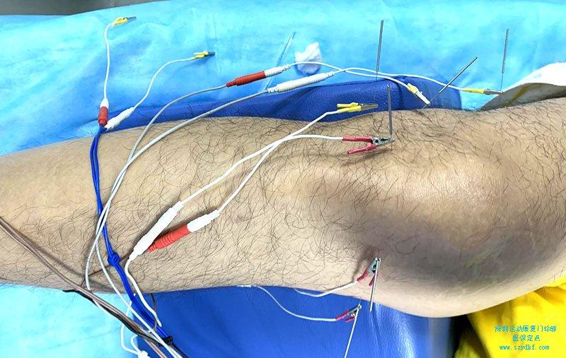 右膝疼痛1月-半月板损伤