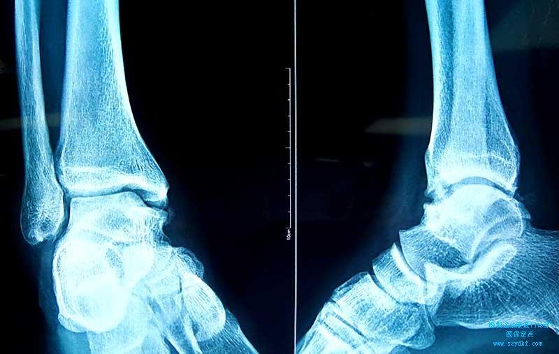 右侧胫骨远端撕脱性骨折