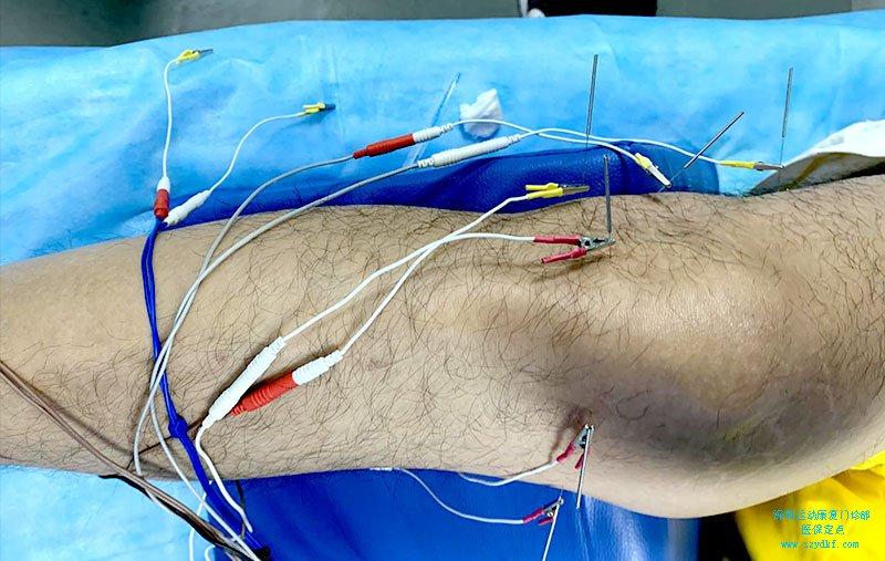 右膝疼痛,右膝轻度肿胀,膝间隙压痛