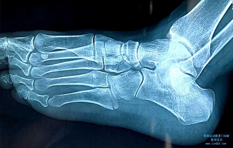 左踝关节创伤性关节炎