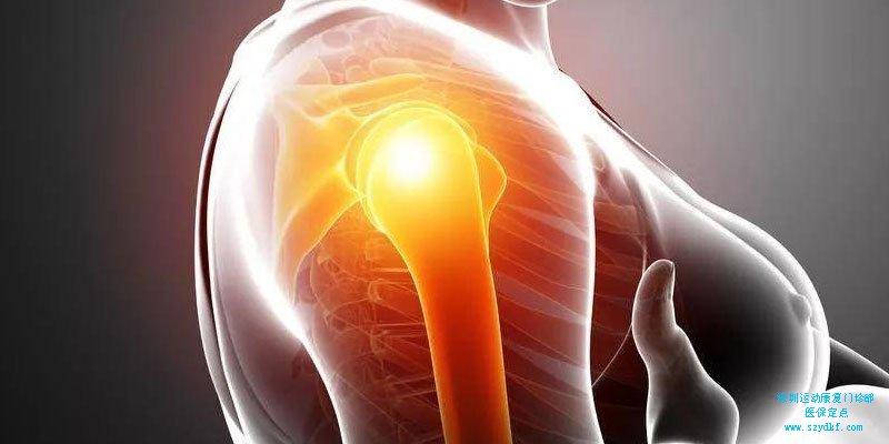 肩周炎的康复训练