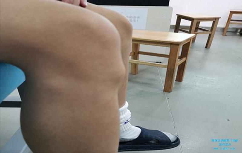 右膝关节胫骨结节处肿胀,压痛-胫骨结节骨骺炎
