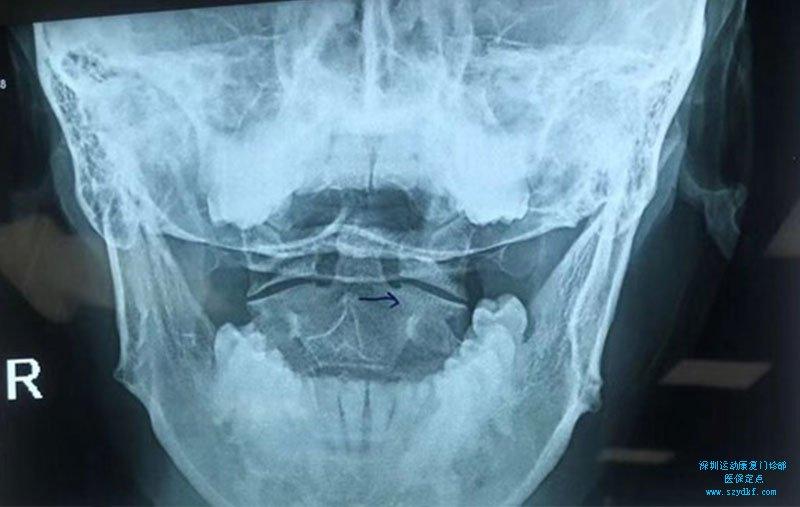 颈部疼痛伴右上肢疼痛麻木2周-神经根型颈椎病