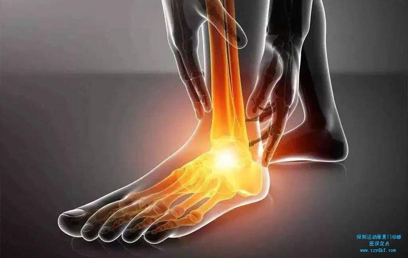 右踝疼痛3年-右踝创伤性关节炎,足底筋膜炎