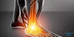 前叉韧带重建术后该怎么恢复